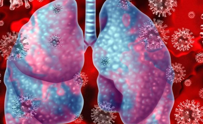 Koronavirüsün 4 yeni belirtisi daha ortaya çıktı!
