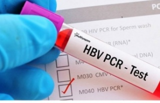 PCR testi ücreti belli oldu! PCR test ücreti ne...