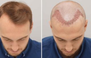 Saç Ekimi Sonrası Şişlik Normal Midir?