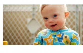 Otizm Çocuklarda Nasıl Fark Edilir?