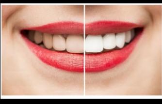 Diş beyazlatma ve yöntemleri