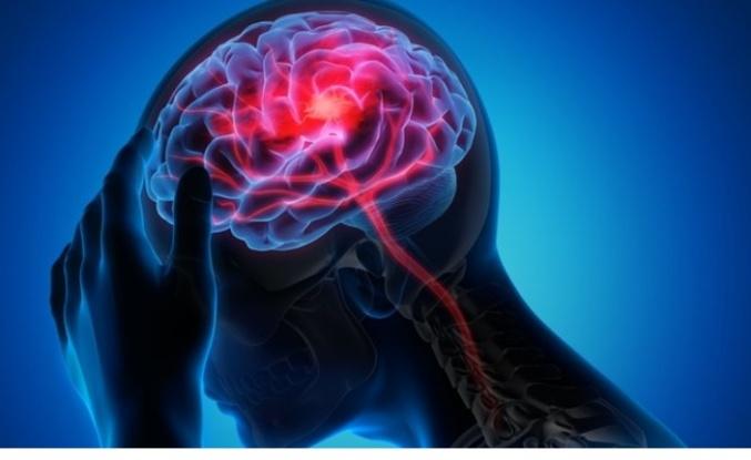 Beyin sisi nedir, belirtileri nelerdir?