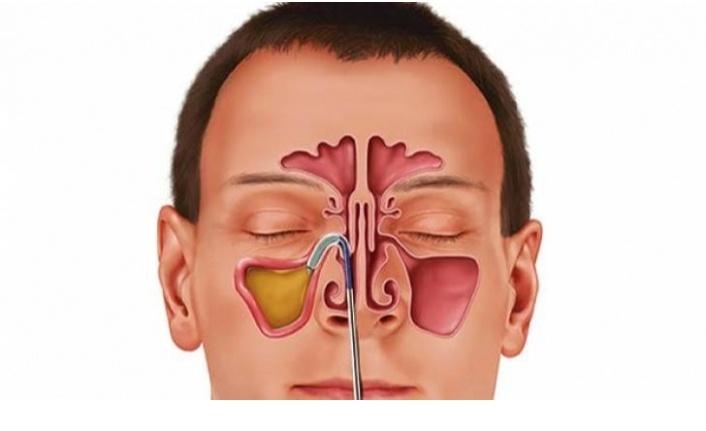 Sinüzit kaynaklı baş ağrısı nasıl geçer?